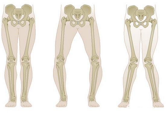 正常腿、O形腿和X形腿