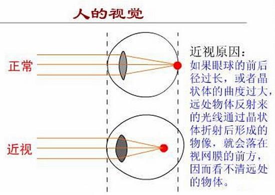 保护视力并不难(三)