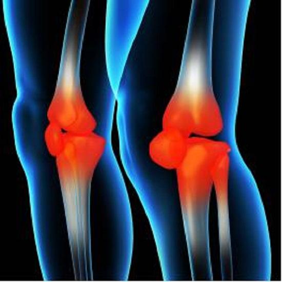 膝关节损伤