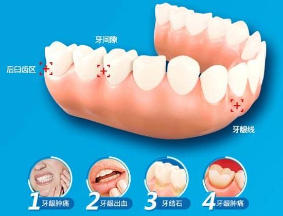 电动牙刷可以美白牙齿吗
