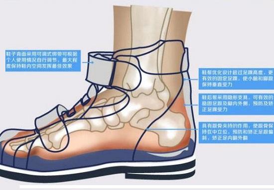 机能鞋的主要功能