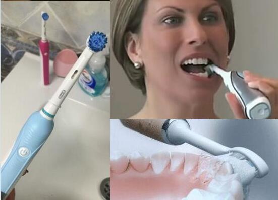 电动牙刷相关问题杂谈