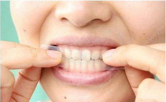 美白牙贴的使用