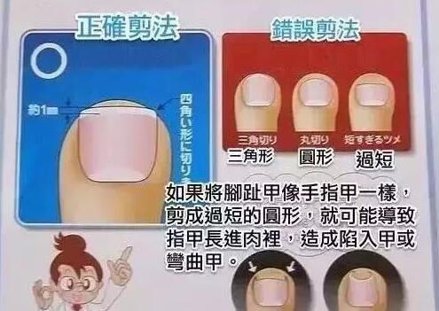 如何正确地修剪脚指指甲