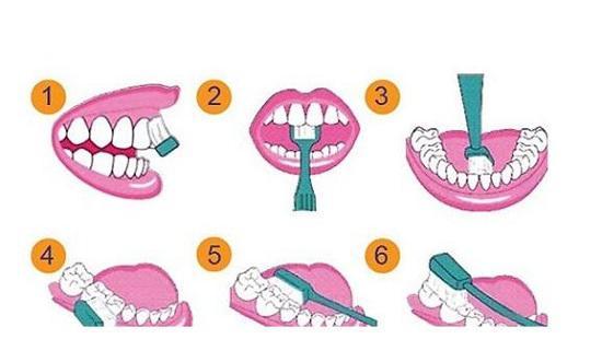如何防止蛀牙