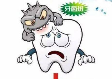 牙菌斑和牙齿