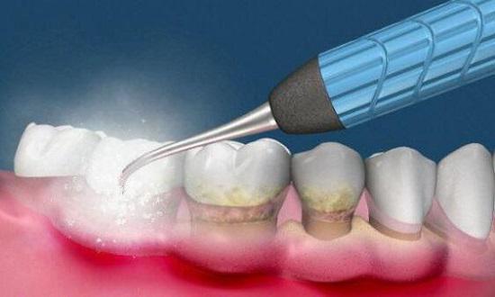 清理牙结石(效果图)