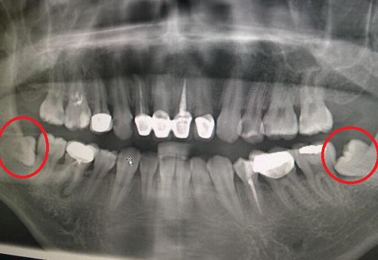 X光片中的智齿