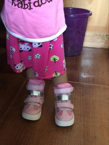 宝宝脚穿矫正鞋