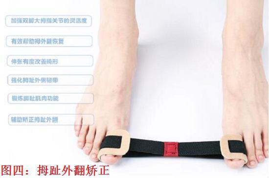 脚趾畸形矫正