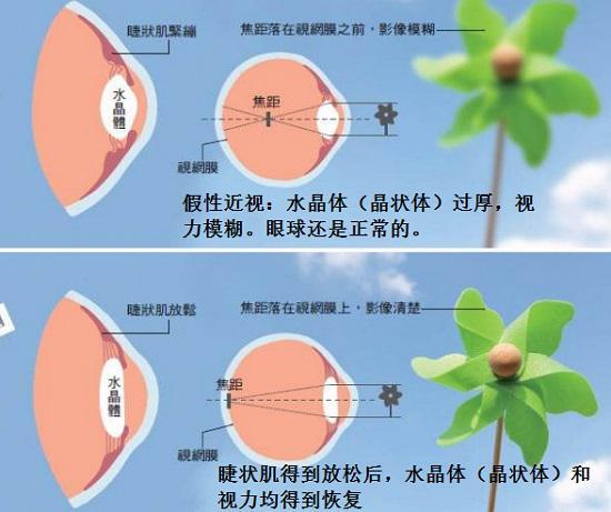 假性近视的恢复与治疗原理