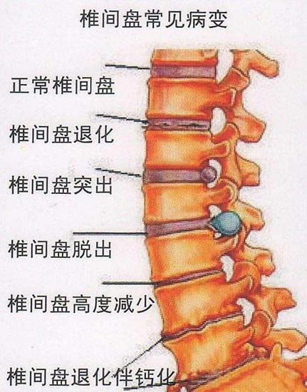 常见的腰椎疾病