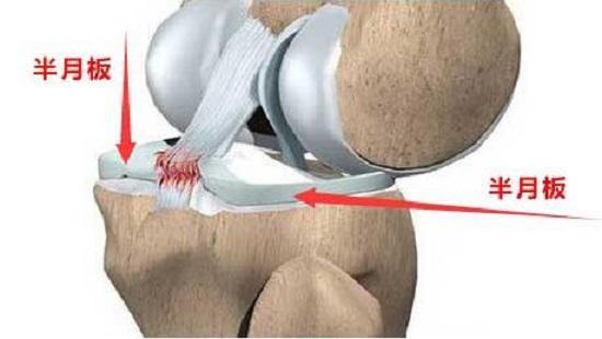 膝盖酸痛的元凶-半月板损伤