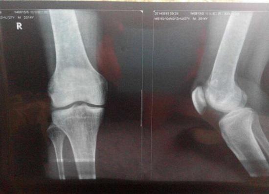 膝关节X照片