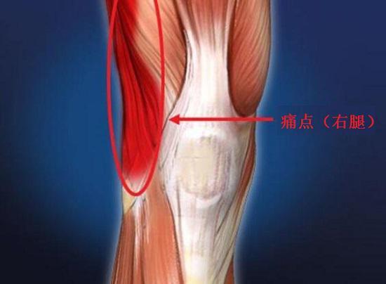髂胫束综合症的痛点(右膝外侧)