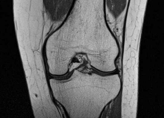 膝关节造影(来自于网络)