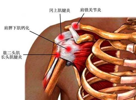 盘点几种适合肩周炎患者的健身器材