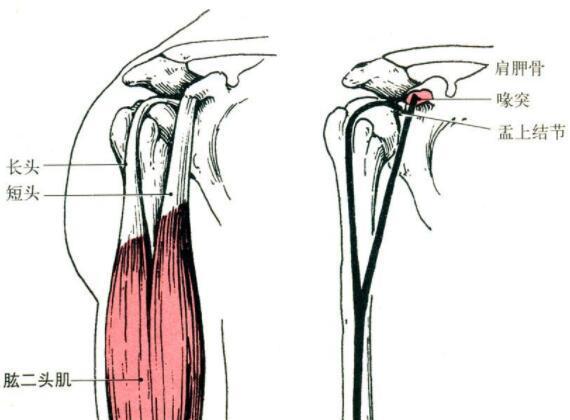 肱二头肌长头肌腱鞘炎的预防和康复