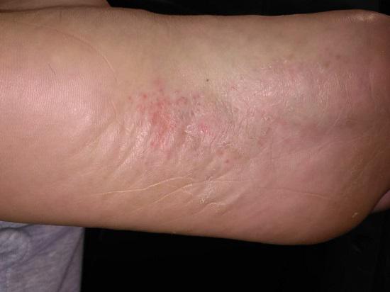 脚心起红疹的原因及应对方法