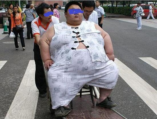 重度肥胖如何减肥