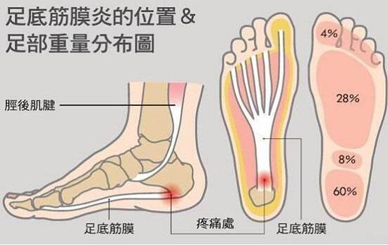跑步后脚心疼是什么原因